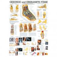 Gesunde u. Kranke Füße